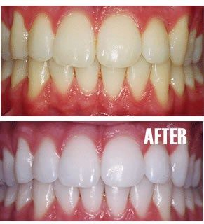 DIY toothpaste with baking soda hydrogen peroxide