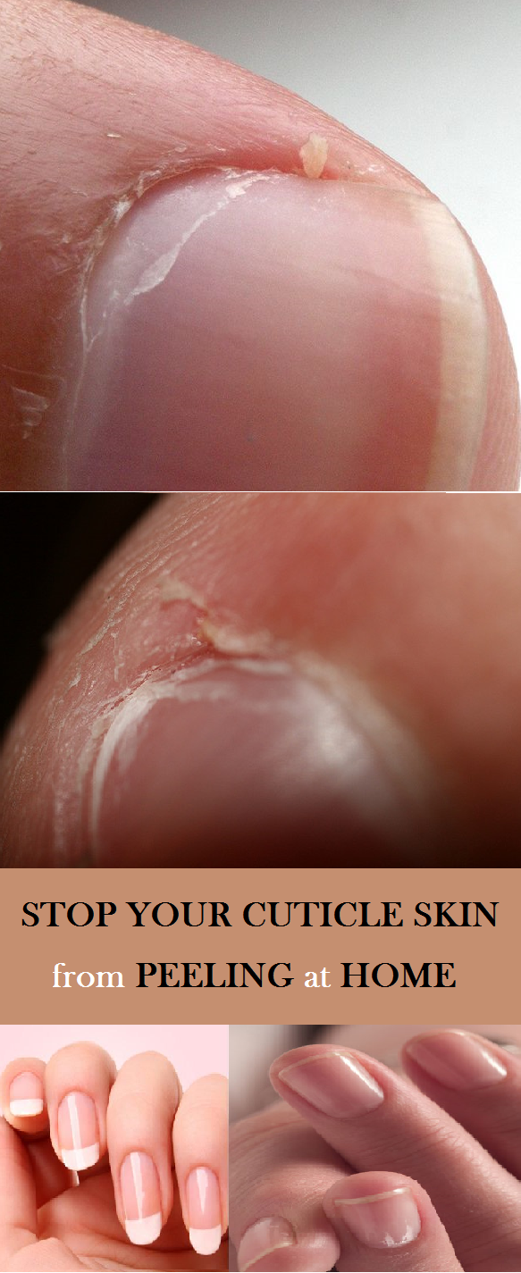 5 Causes and Their Corresponding Treatments of Skin Peeling Around Nails -   Stop Your Cuticle Skin