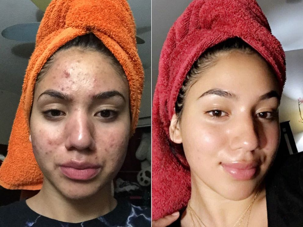 15 neutrogena skin care Routine ideas
