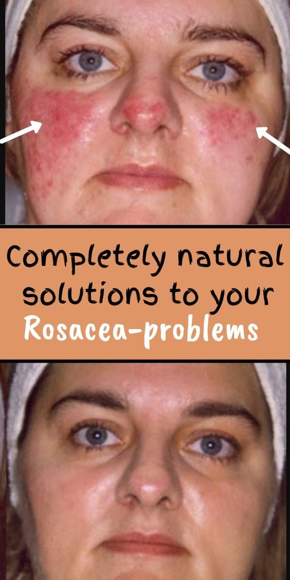 Completely natural solutions to your Rosacea-problems. -   11 skin care DIY redness ideas