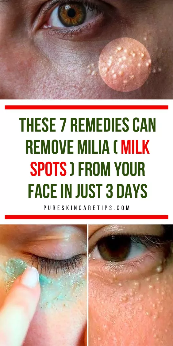 Get Rid Of Milia Fast With These 7 Home Remedies -   9 skin care Remedies facials ideas